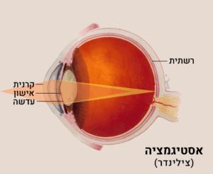 אילוסטרציה של אסטיגמציה (צילינדר) בעין