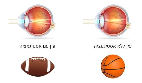 תרשים המציג עין עם אסטיגמציה