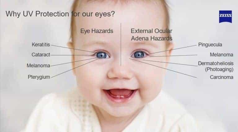 סכנות לעיניים בחשיפה לקרינת UV