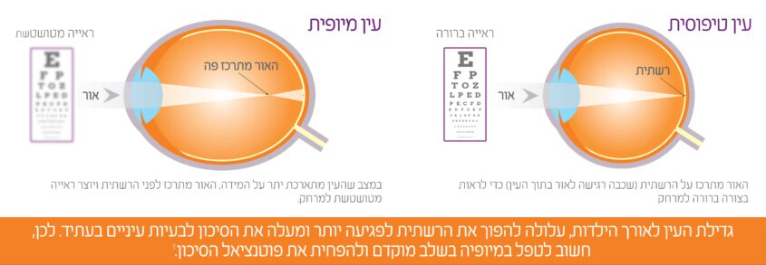 ההבדל בין עין טיפוסית לעין מיופית